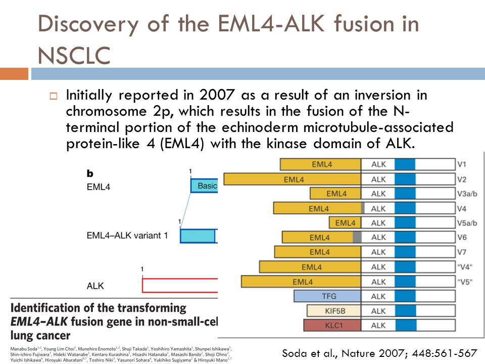 Discovery of the EML4-ALK fusion in NSCLC