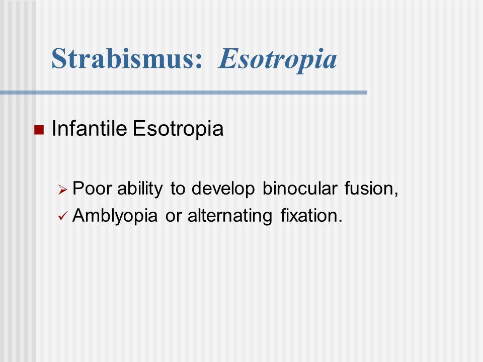 Strabismus: Esotropia