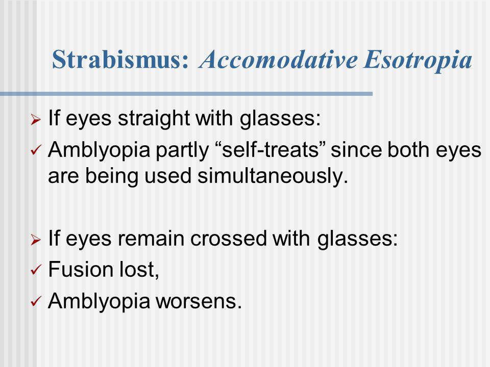 Strabismus: Accomodative Esotropia