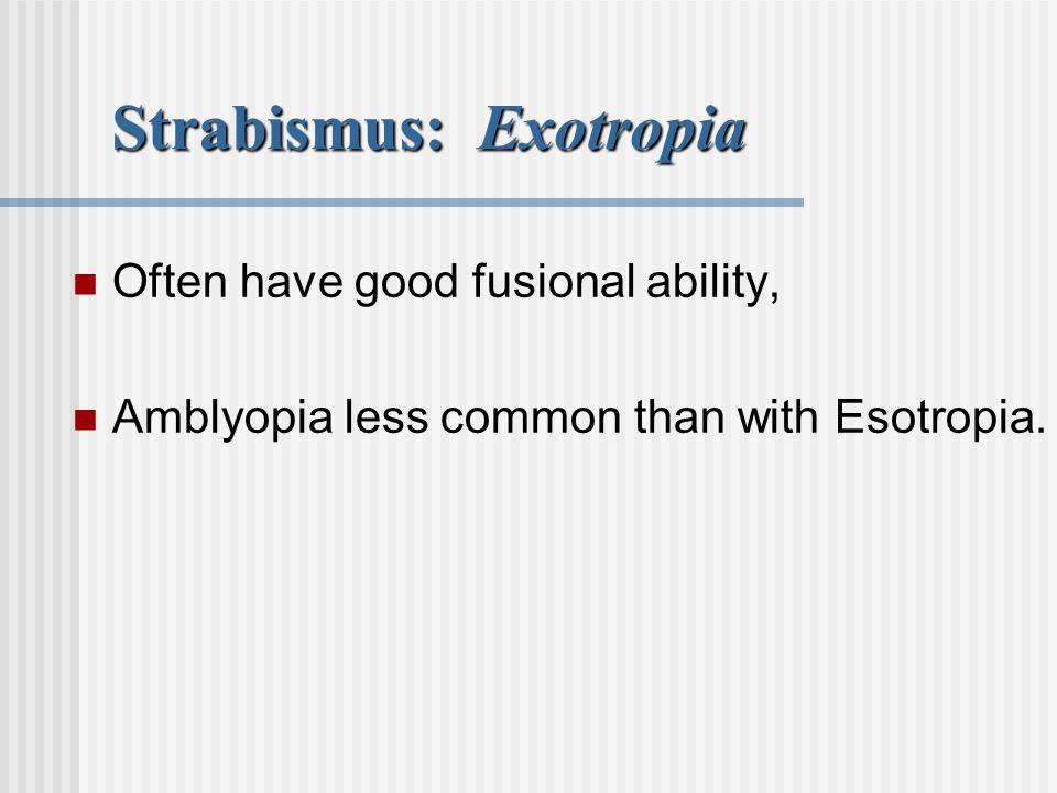 Strabismus: Exotropia