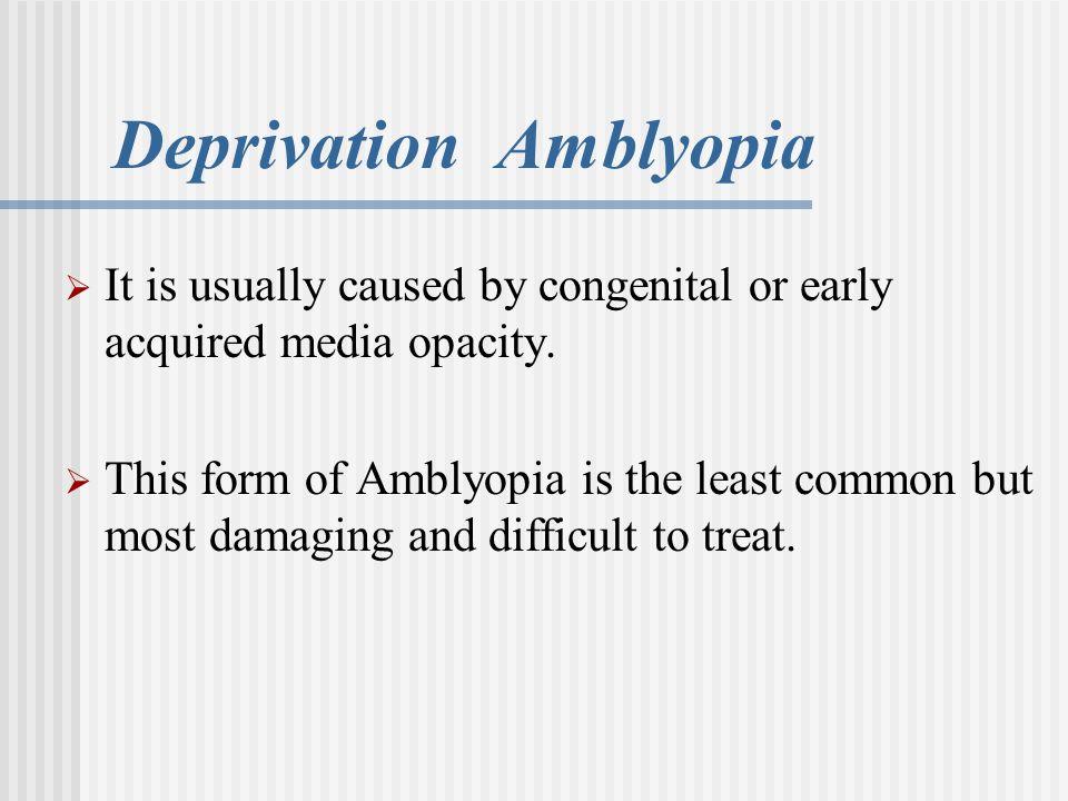 Deprivation Amblyopia