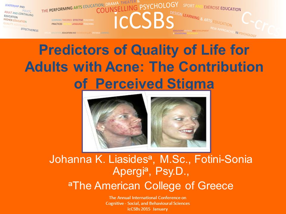 Predictors of Quality of Life for Adults with Acne: The Contribution of Perceived Stigma