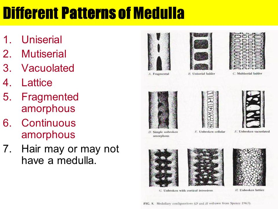 Different Patterns of Medulla