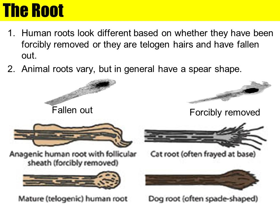 The Root Human roots look different based on whether they have been forcibly removed or they are telogen hairs and have fallen out.