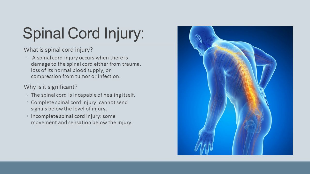 Spinal Cord Injury: What is spinal cord injury Why is it significant
