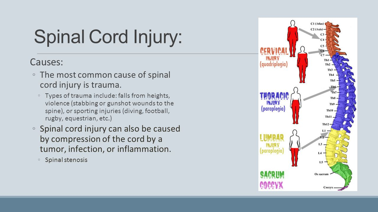 Spinal Cord Injury: Causes: