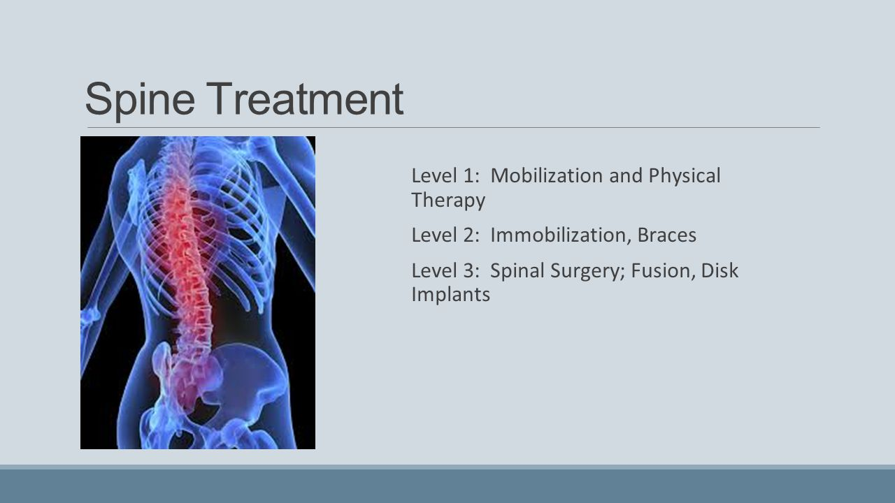 Spine Treatment Level 1: Mobilization and Physical Therapy