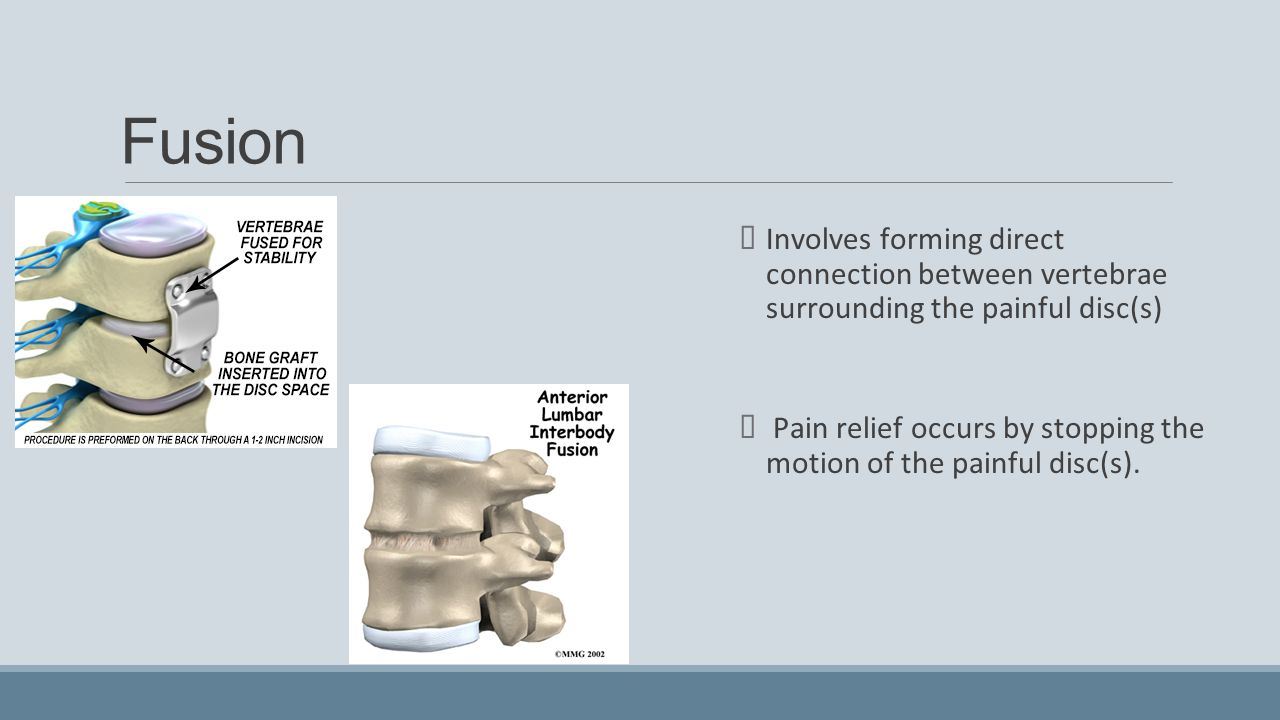 Fusion Involves forming direct connection between vertebrae surrounding the painful disc(s)