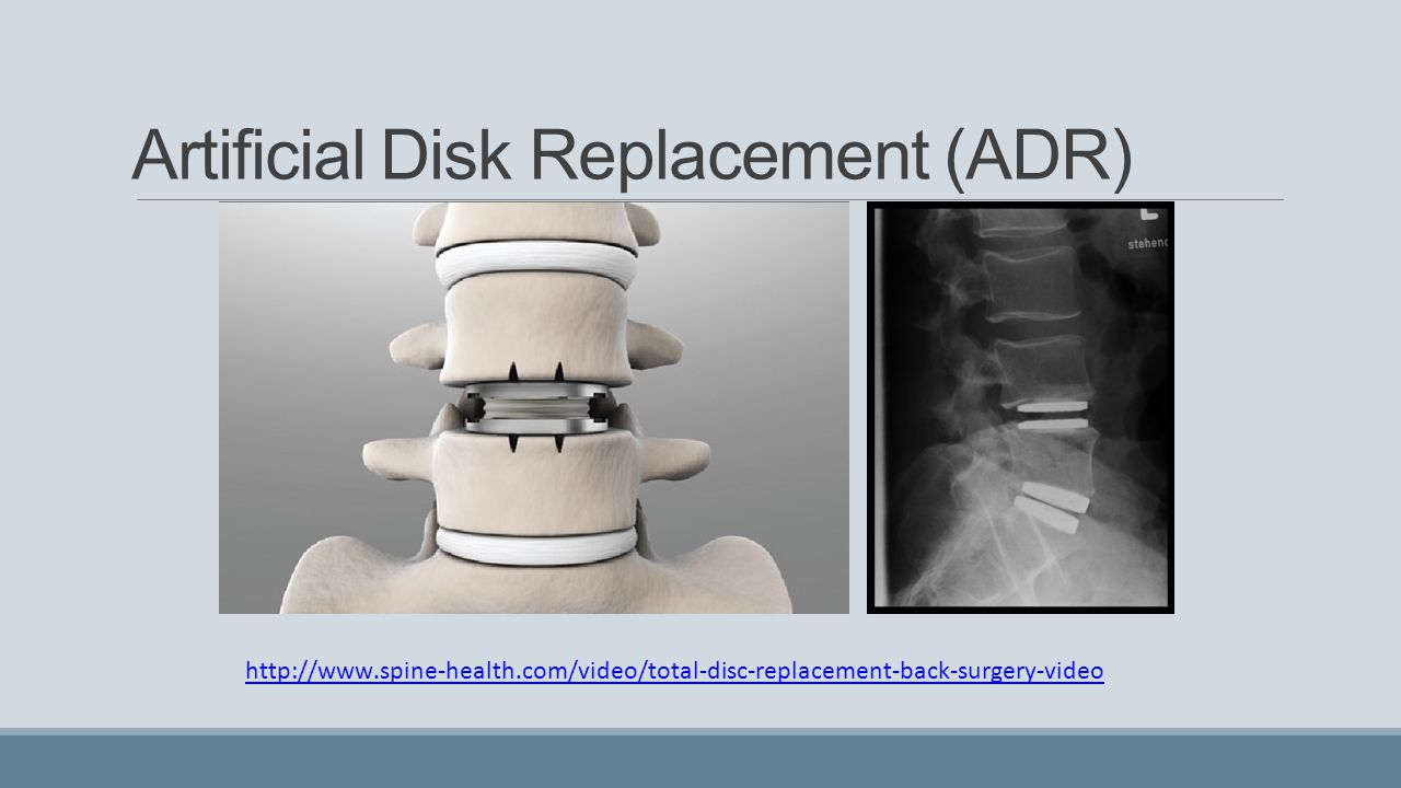 Artificial Disk Replacement (ADR)
