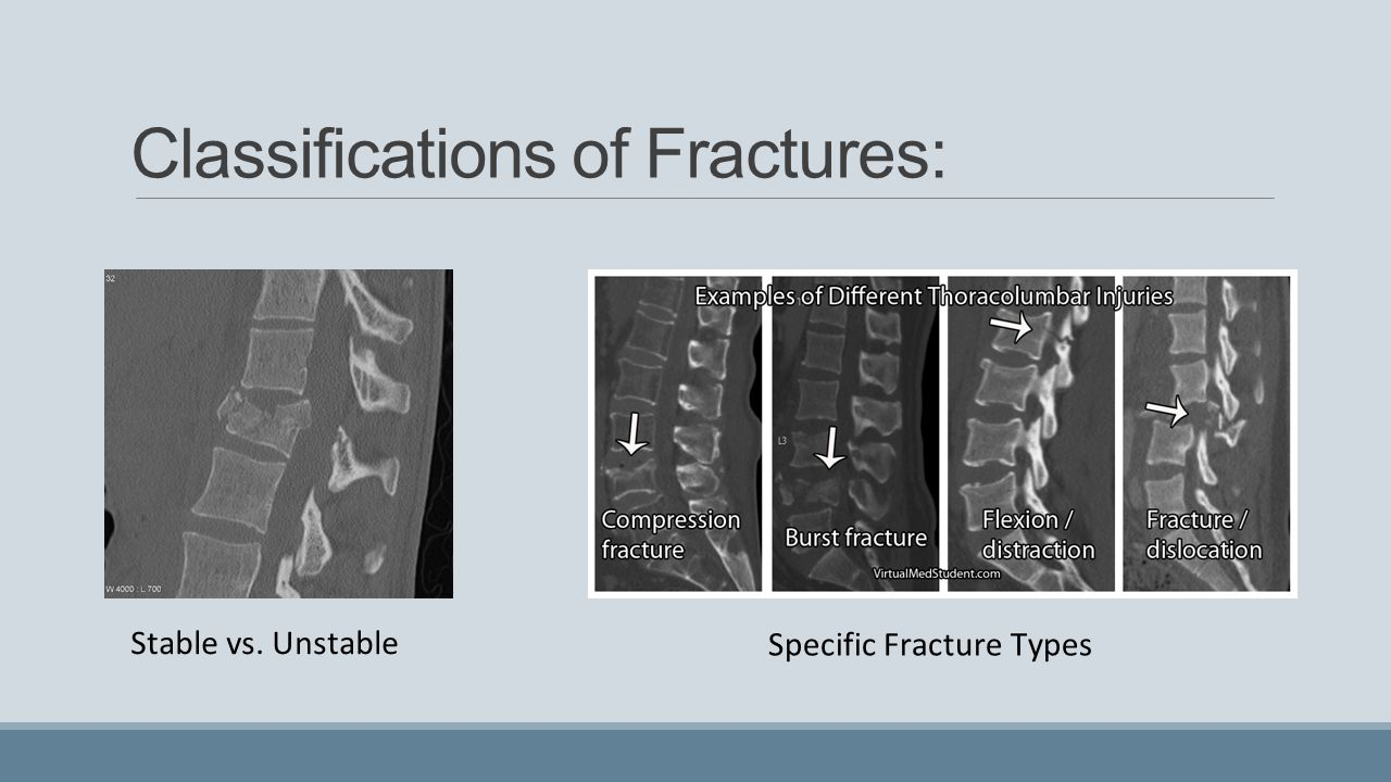 Classifications of Fractures: