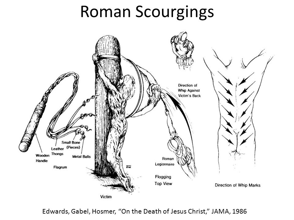 Roman Scourgings Edwards, Gabel, Hosmer, On the Death of Jesus Christ, JAMA, 1986