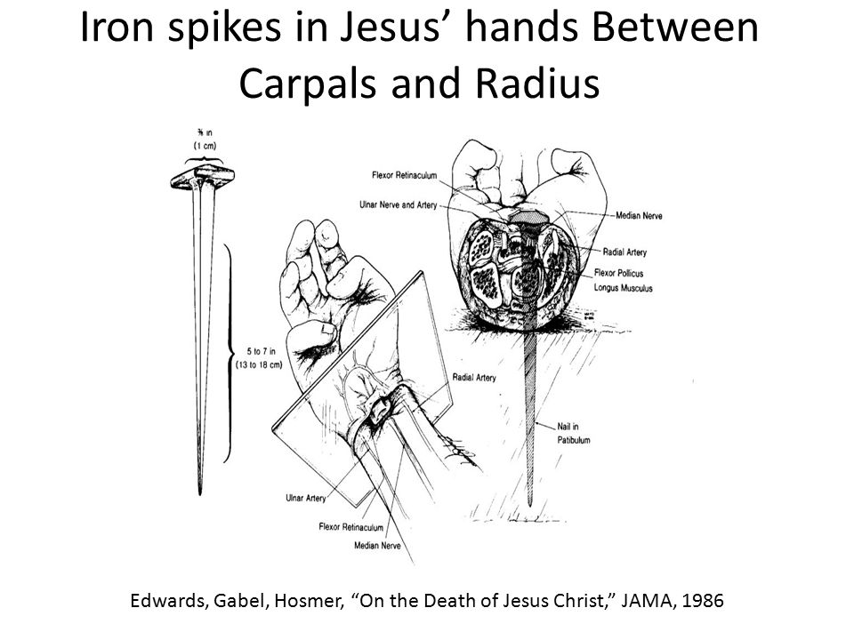 Iron spikes in Jesus' hands Between Carpals and Radius