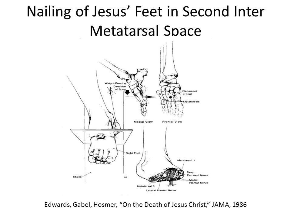 Nailing of Jesus' Feet in Second Inter Metatarsal Space