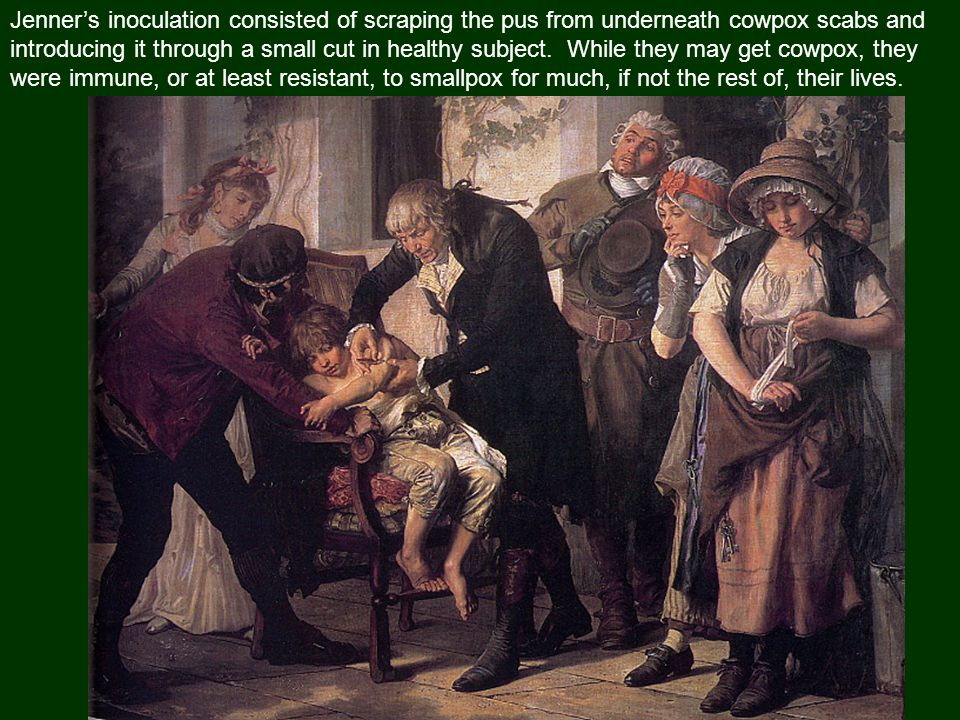 Jenner's inoculation consisted of scraping the pus from underneath cowpox scabs and introducing it through a small cut in healthy subject.