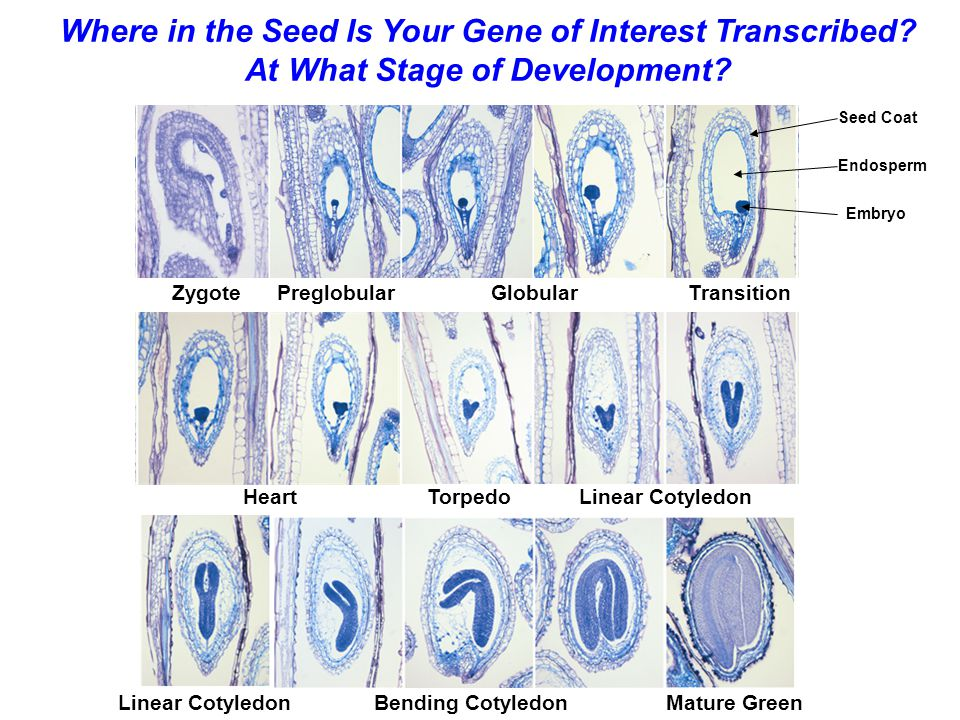 Where in the Seed Is Your Gene of Interest Transcribed
