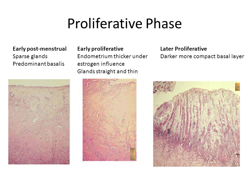 Proliferative Phase Early post-menstrual Sparse glands