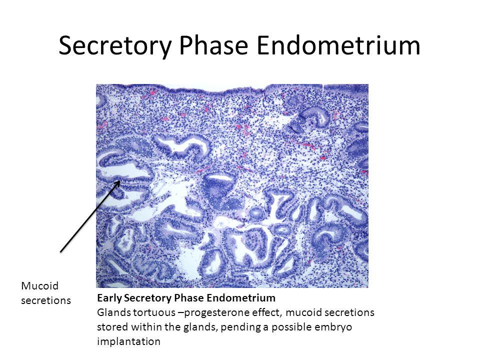 Secretory Phase Endometrium