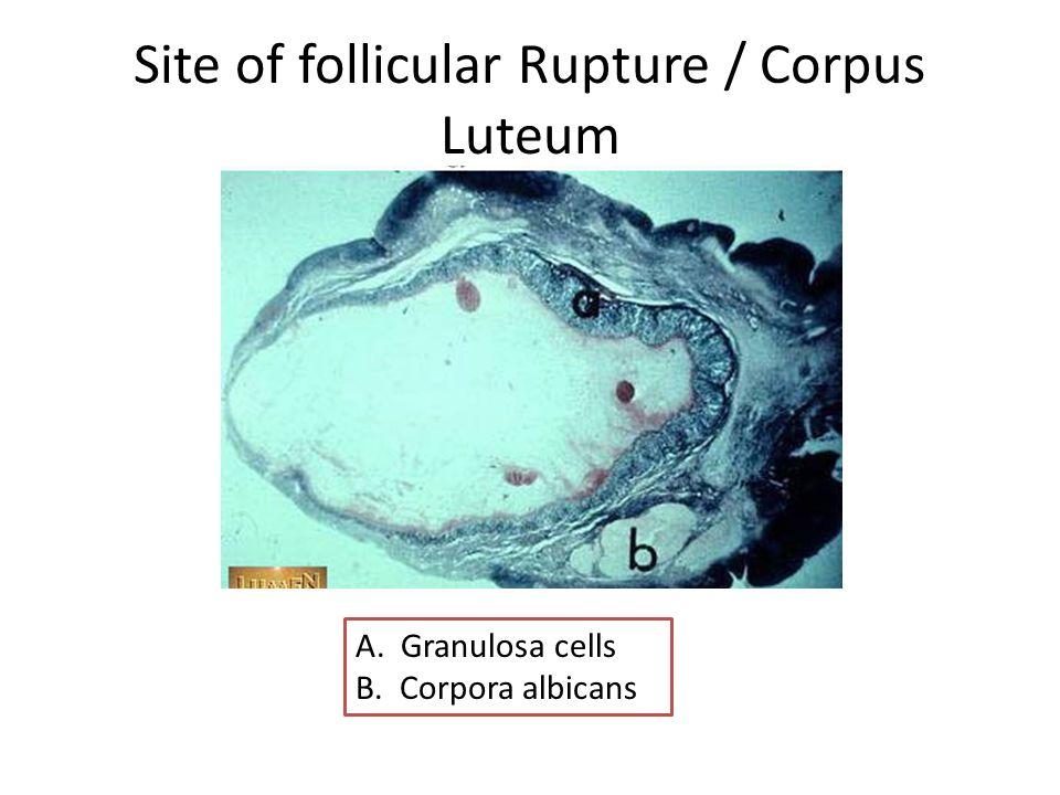 Site of follicular Rupture / Corpus Luteum