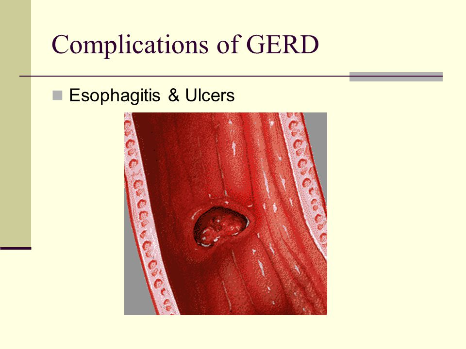 Complications of GERD Esophagitis & Ulcers