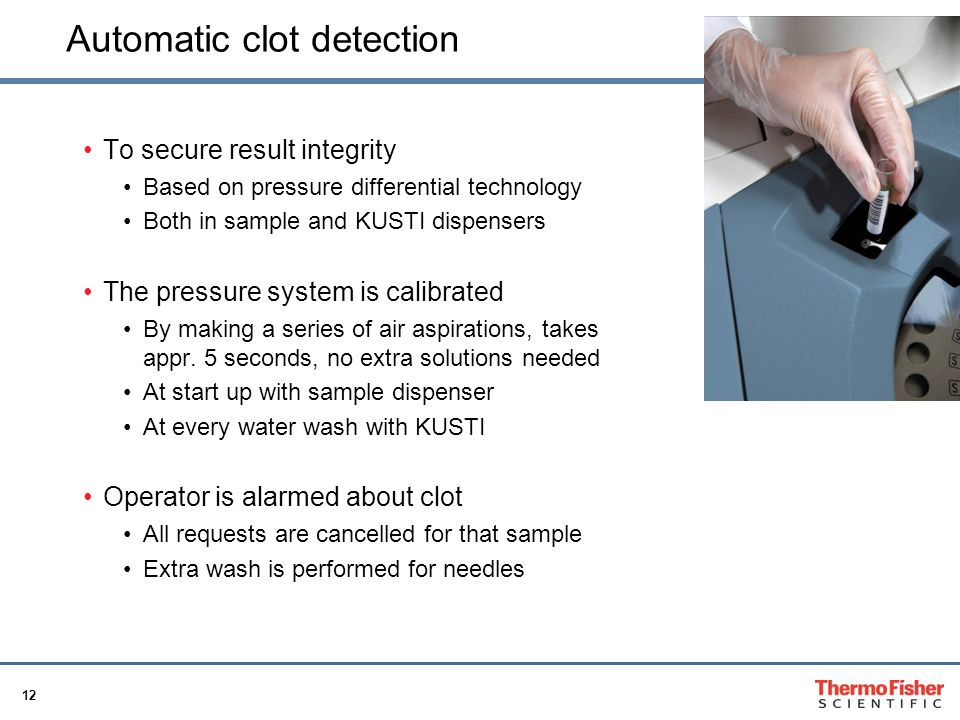 Automatic clot detection