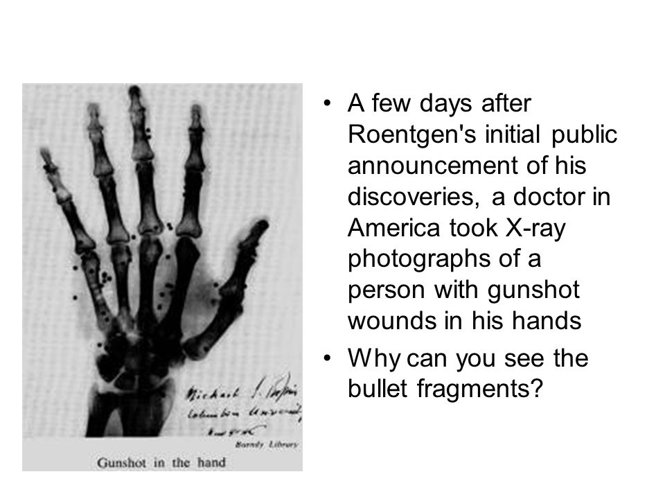 A few days after Roentgen s initial public announcement of his discoveries, a doctor in America took X-ray photographs of a person with gunshot wounds in his hands