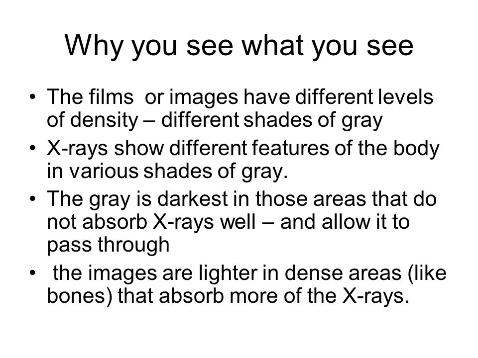 Why you see what you see The films or images have different levels of density – different shades of gray.