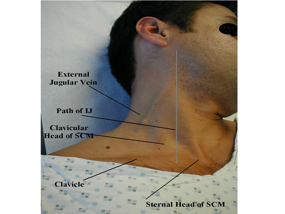 Shows the vertical course of the ijv which psses inbetween the two heads of the st mastoid under the medial end of clavicle