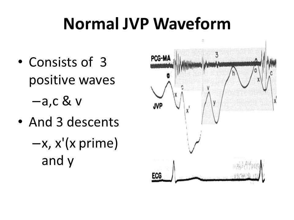Normal JVP Waveform Consists of 3 positive waves a,c & v