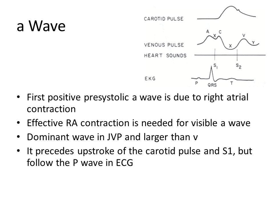 a Wave First positive presystolic a wave is due to right atrial contraction. Effective RA contraction is needed for visible a wave.