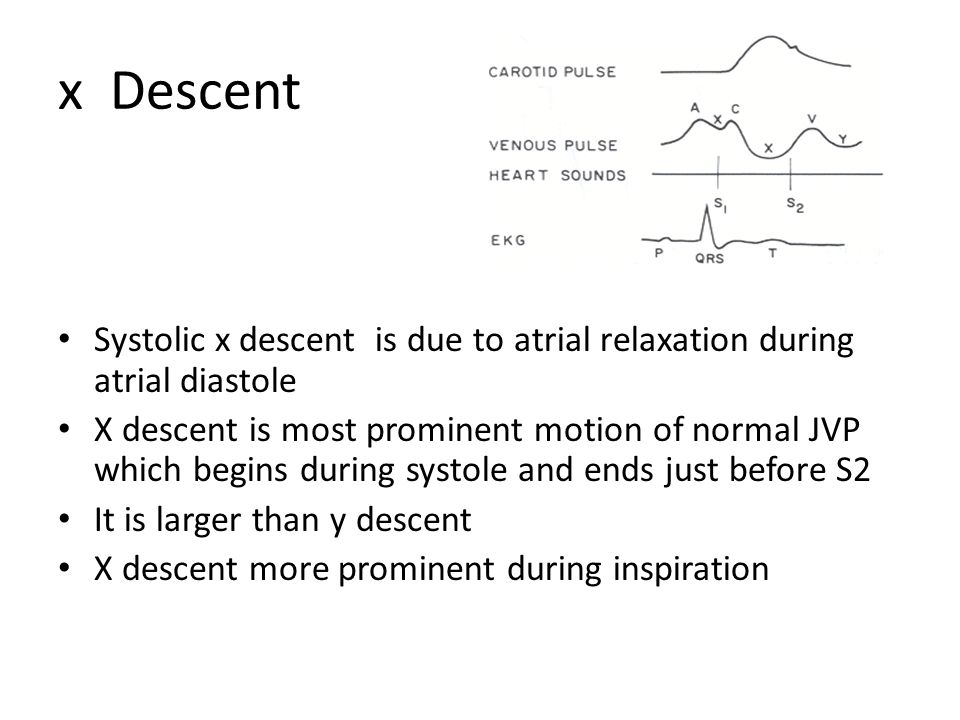 x Descent Systolic x descent is due to atrial relaxation during atrial diastole.