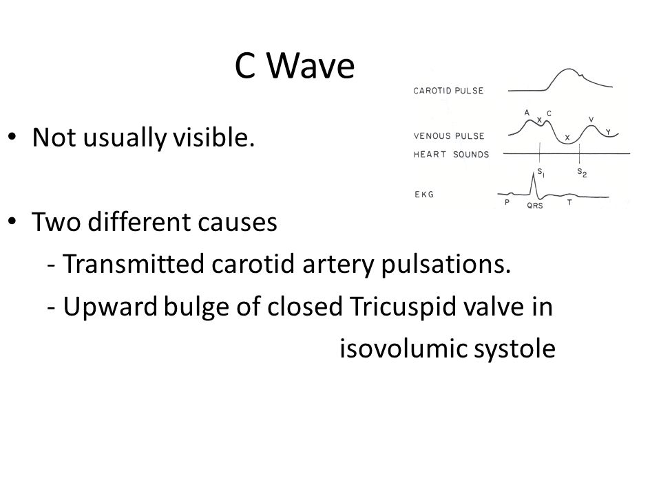 C Wave Not usually visible. Two different causes