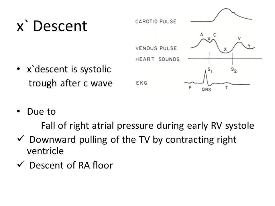 x` Descent x`descent is systolic trough after c wave Due to