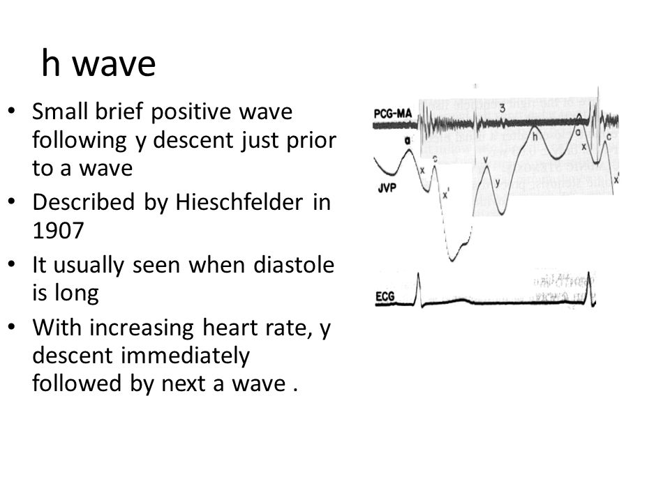 h wave Small brief positive wave following y descent just prior to a wave. Described by Hieschfelder in 1907.