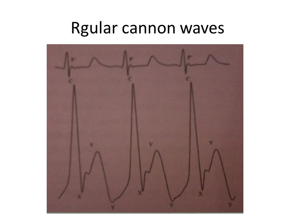 Rgular cannon waves