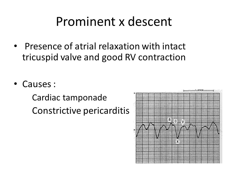 Prominent x descent Presence of atrial relaxation with intact tricuspid valve and good RV contraction.