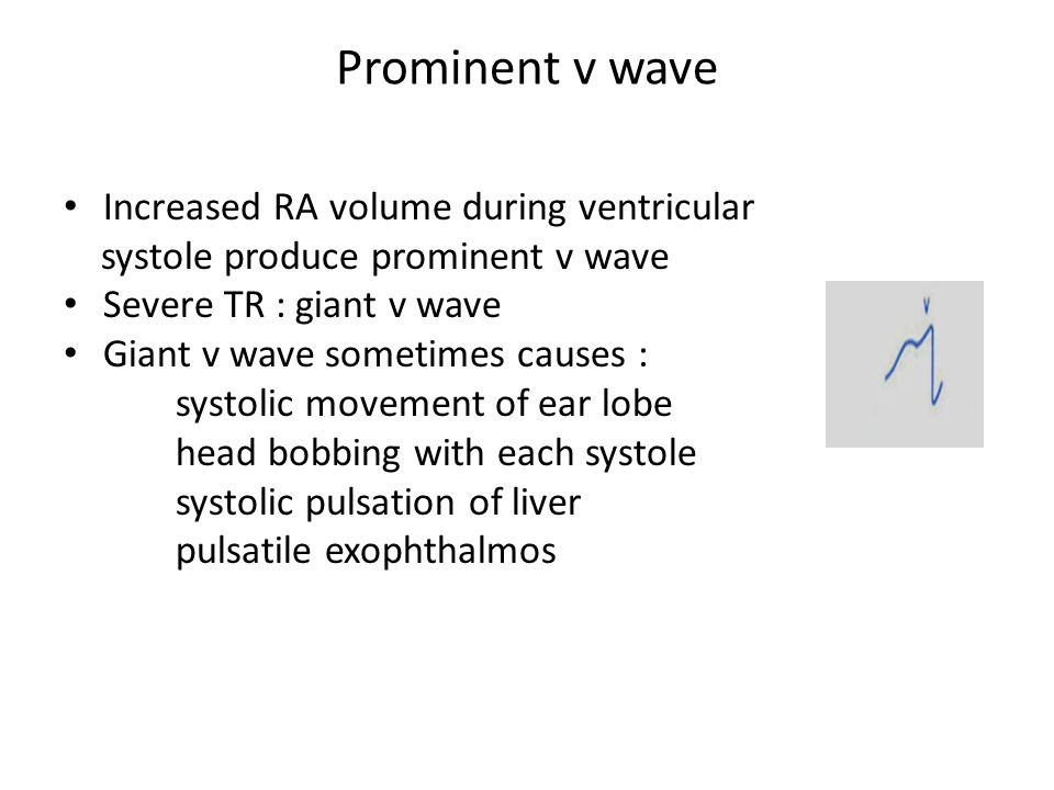 Prominent v wave Increased RA volume during ventricular