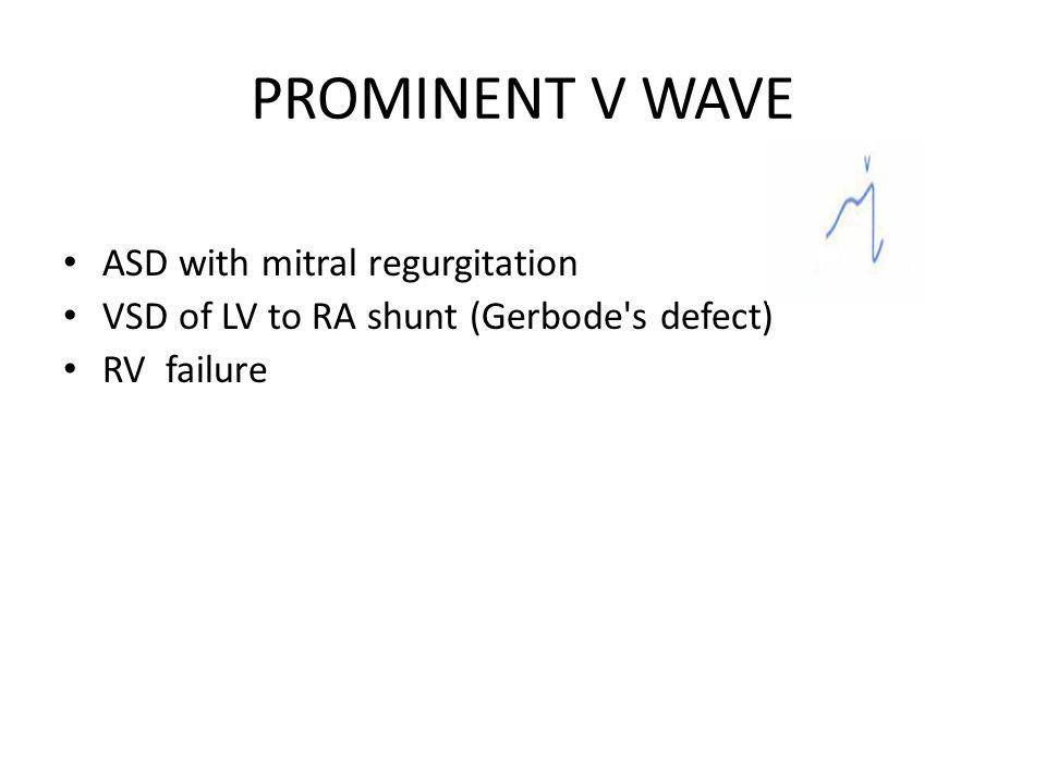 PROMINENT V WAVE ASD with mitral regurgitation