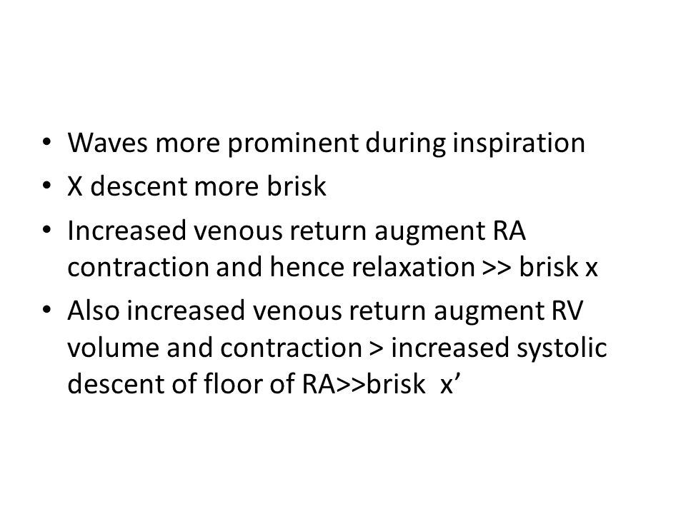 Waves more prominent during inspiration