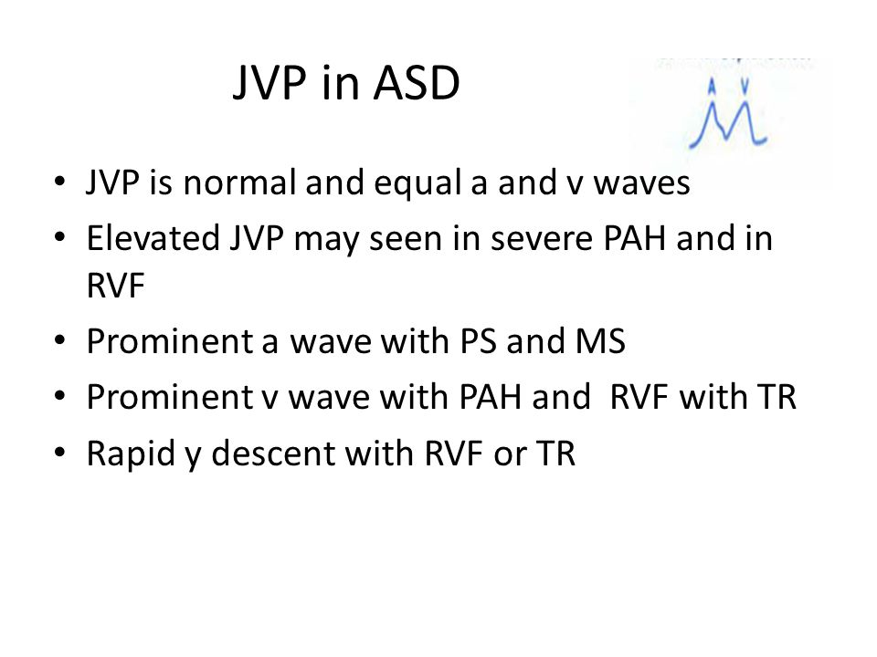 JVP in ASD JVP is normal and equal a and v waves