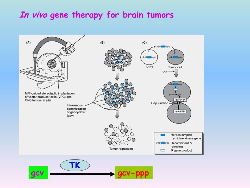 In vivo gene therapy for brain tumors