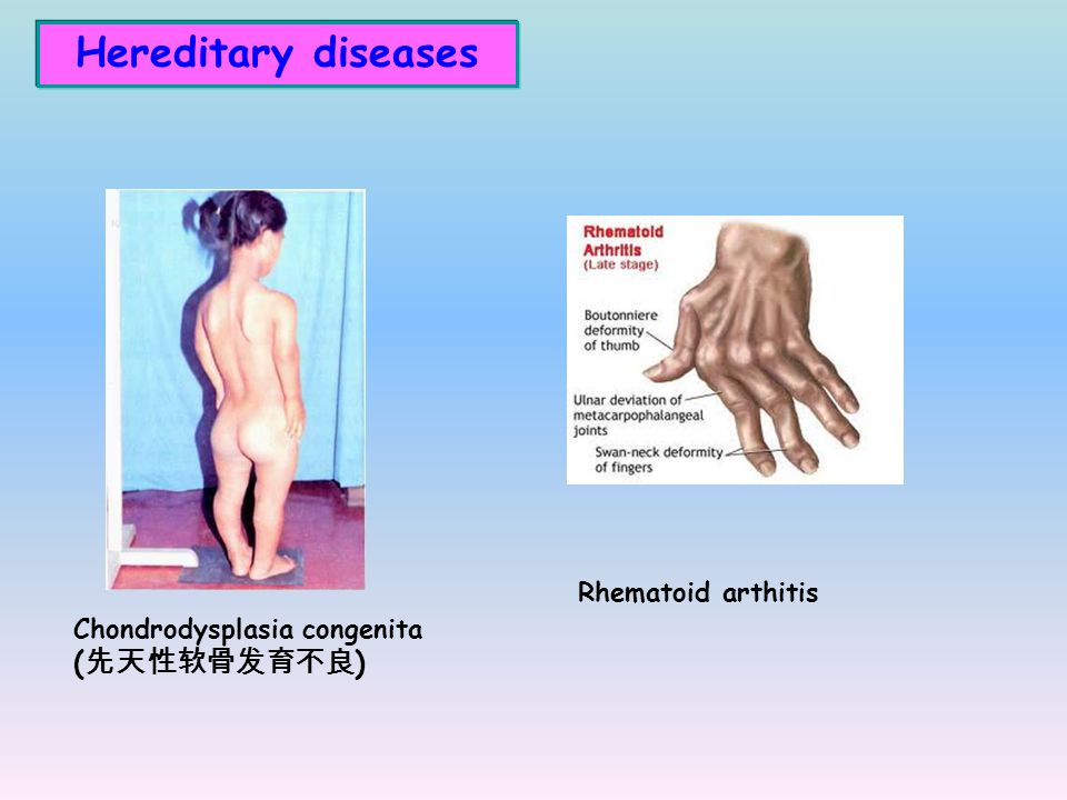Hereditary diseases Rhematoid arthitis