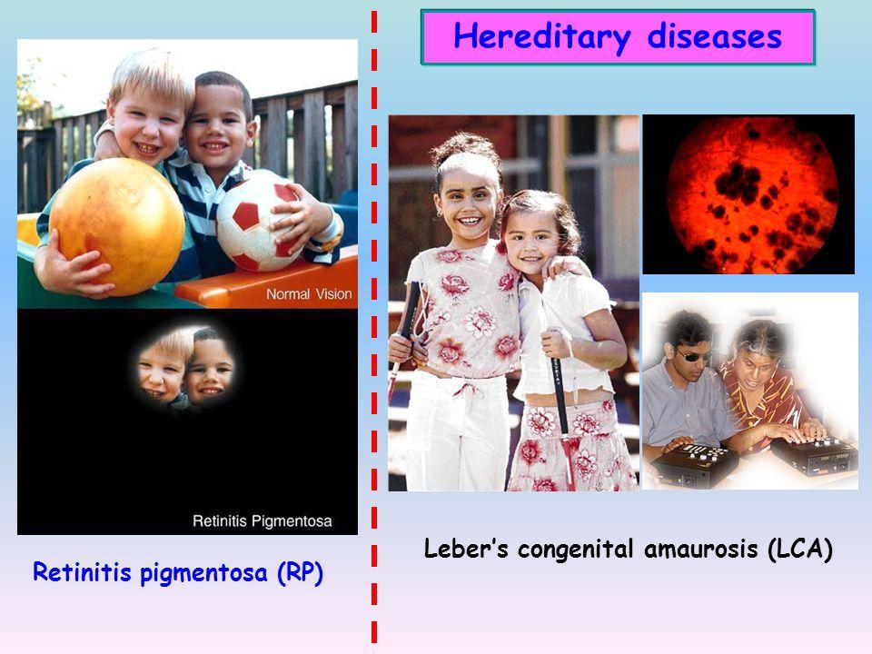Hereditary diseases Leber's congenital amaurosis (LCA)