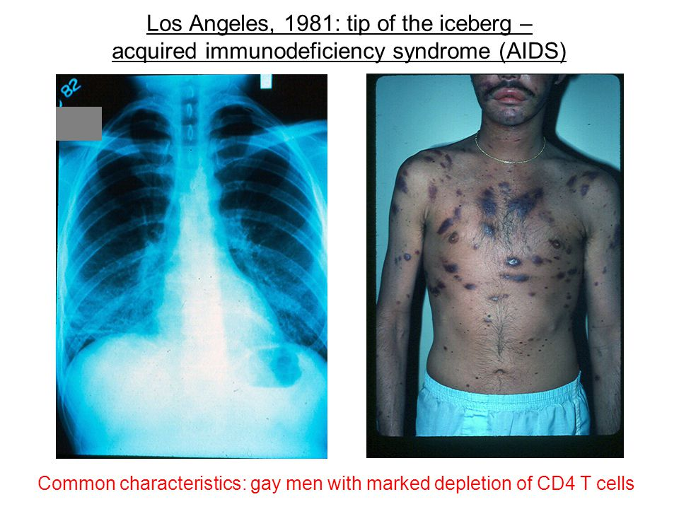 Los Angeles, 1981: tip of the iceberg – acquired immunodeficiency syndrome (AIDS)
