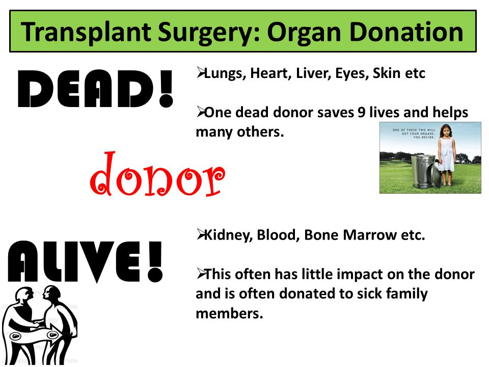 Transplant Surgery: Organ Donation