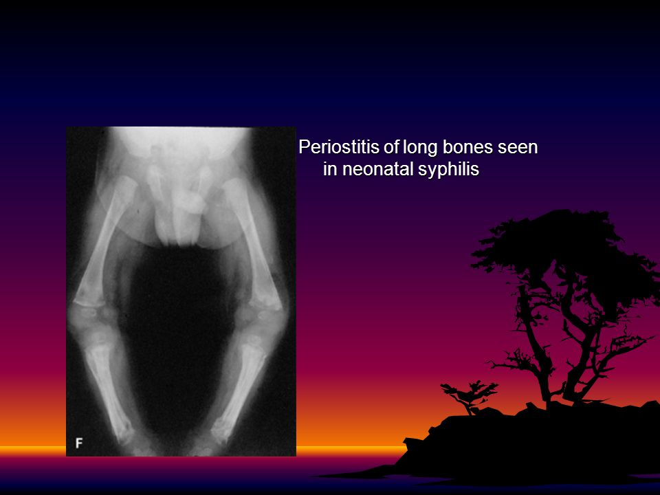 Periostitis of long bones seen in neonatal syphilis