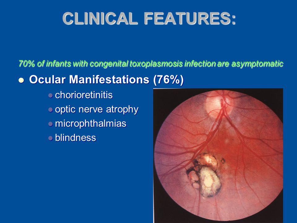 CLINICAL FEATURES: Ocular Manifestations (76%) chorioretinitis