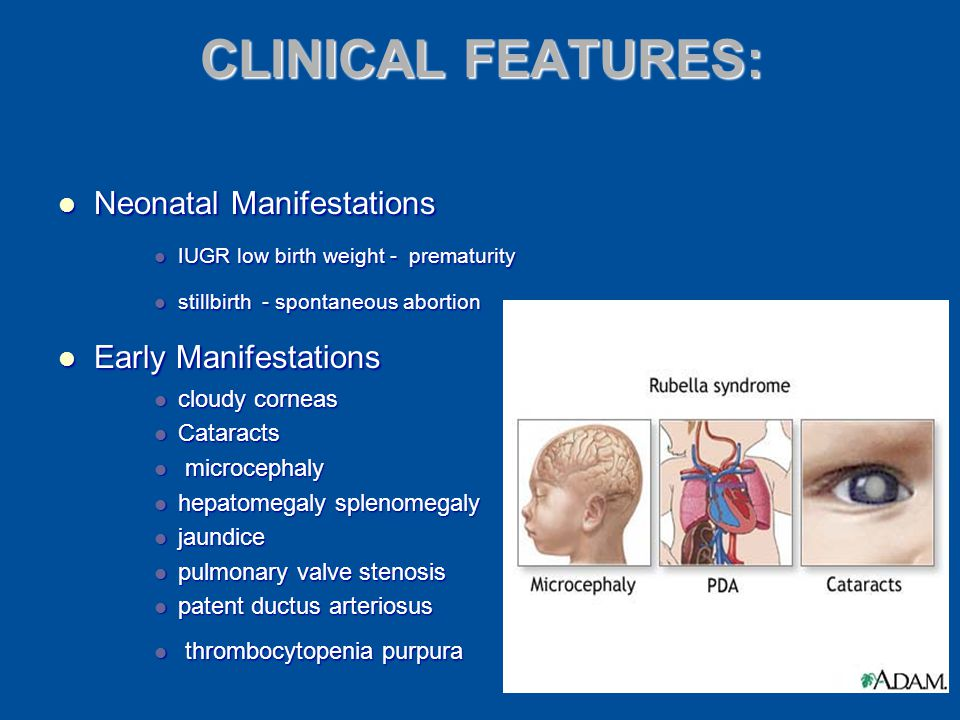CLINICAL FEATURES: Neonatal Manifestations Early Manifestations