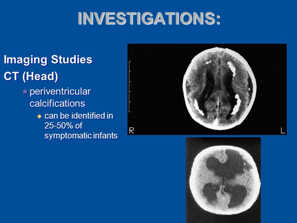 INVESTIGATIONS: Imaging Studies CT (Head)