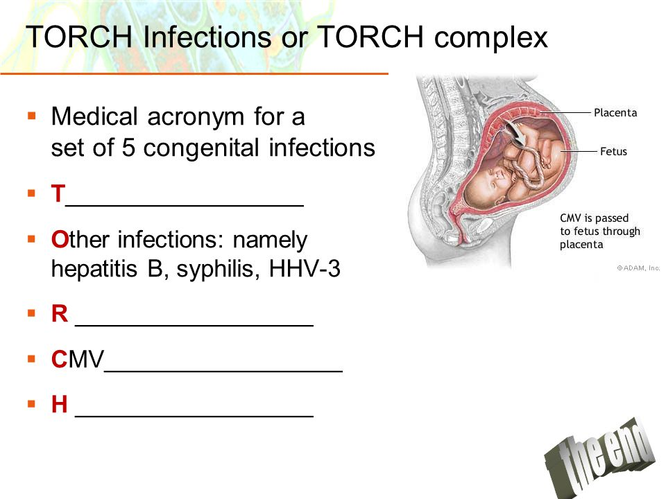 TORCH Infections or TORCH complex