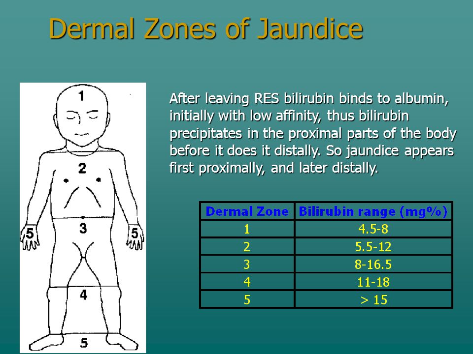 Dermal Zones of Jaundice